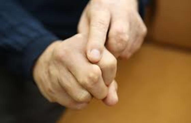 Cứng khớp ngón tay do viêm khớp dạng thấp