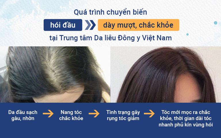Những chuyển biến tích cực của khách hàng sau khi điều trị rụng tóc tại Trung tâm Da liễu Đông y Việt Nam
