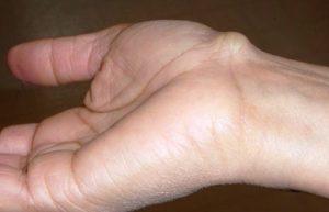 Nổi cục ở mu bàn tay là bị gì? Có nguy hiểm không?