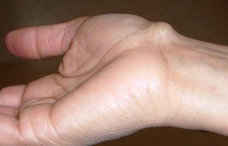 Nổi cục ở mu bàn tay là bị gì?