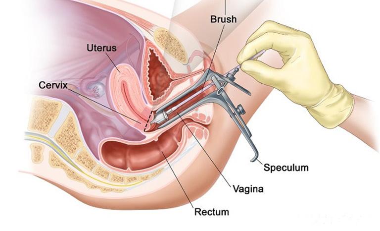 tầm soát ung thư cổ tử cung