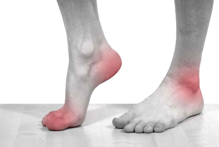 3 loại thuốc trị gout của Pháp tốt nhất hiện nay
