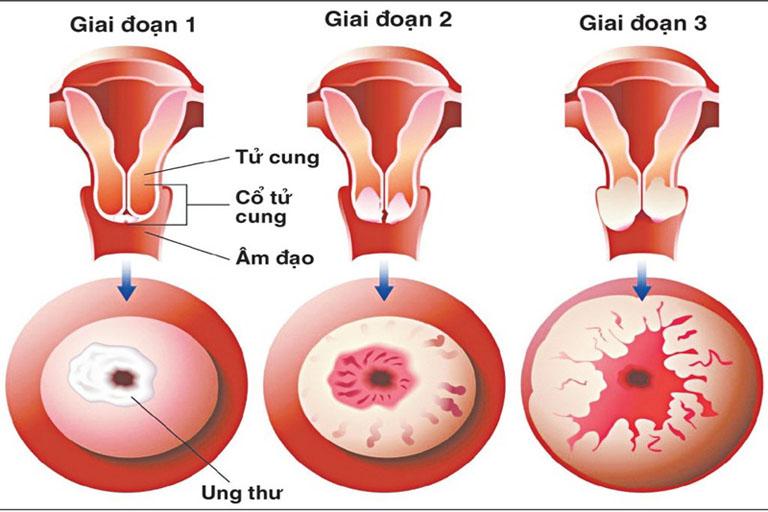 các giai đoạn bệnh ung thư cổ tử cung