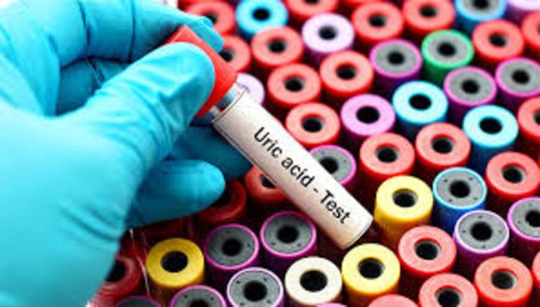 Chẩn đoán viêm khớp dạng thấp dựa trên xét nghiệm CRP , hay còn gọi là xét nghiệm đánh giá Creactive protein. Xét nghiệm dựa trên việc xây dựng độ chính xác của nồng độ protein trong cơ thể, thường là các protein sản xuất tại gan và những dạng viêm cấp tính hoặc viêm tạm thời do nhiễm trùng. Xét nghiệm này đưa ra những kết quả tương đối chính xác, liên quan đến hệ thống bổ thể, một cơ chế bảo vệ của hệ thống miễn dịch. Tuy nhiên trong một số trường hợp xét nghiệm CRP không phản ánh bất kỳ tình trạng viêm nhiễm nhất định, bởi kết quả này có thể đồng nhất với nhiều bệnh lý khác nhau nhưng giống nhau về cơ chế gây bệnh. Do đó mà xét nghiệm này cũng được áp dụng cho những bệnh nhân bị thấp khớp, viêm khớp dạng thấp, bệnh nhân bị lupus… Thông thường kết quả CRP dương tính ở nhóm các đối tượng bệnh nhân như: bệnh nhân bị viêm khớp dạng thấp, bệnh thấp khớp, bệnh nhân bị lupus, bệnh nhân ung thư, lao, viêm phổi, nhồi máu cơ tim, ….