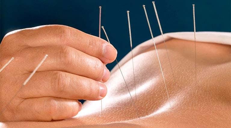 châm cứu chữa bệnh đau lưng ở thanh niên