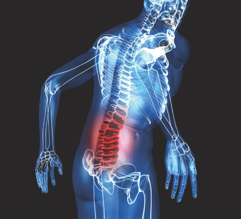 chẩn đoán đau thắt lưng ở nam giới