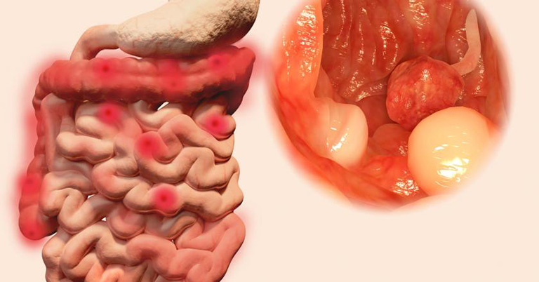 Viêm loét đại trực tràng chảy máu là gì