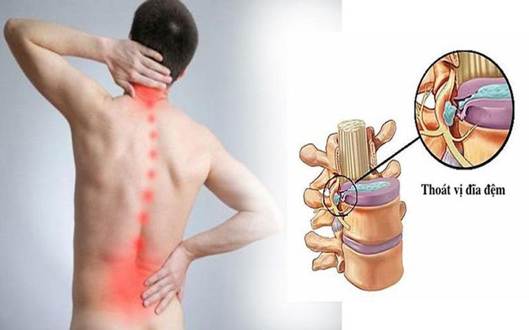 đau lưng vào ban đêm là bệnh gì