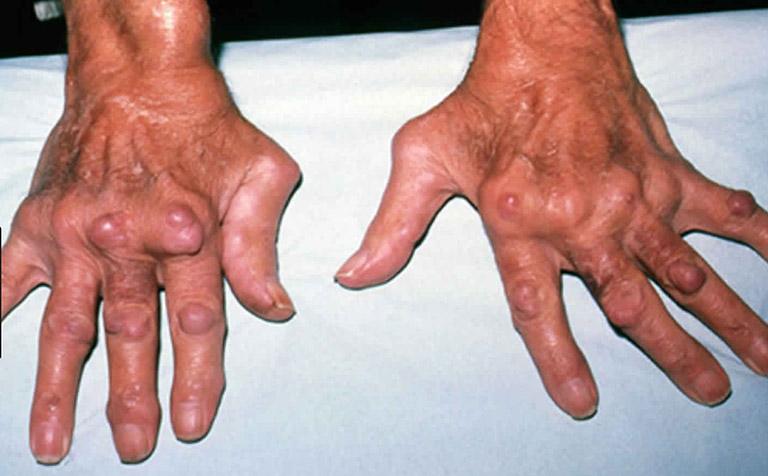 cơ chế hình thành hạt thấp dưới da