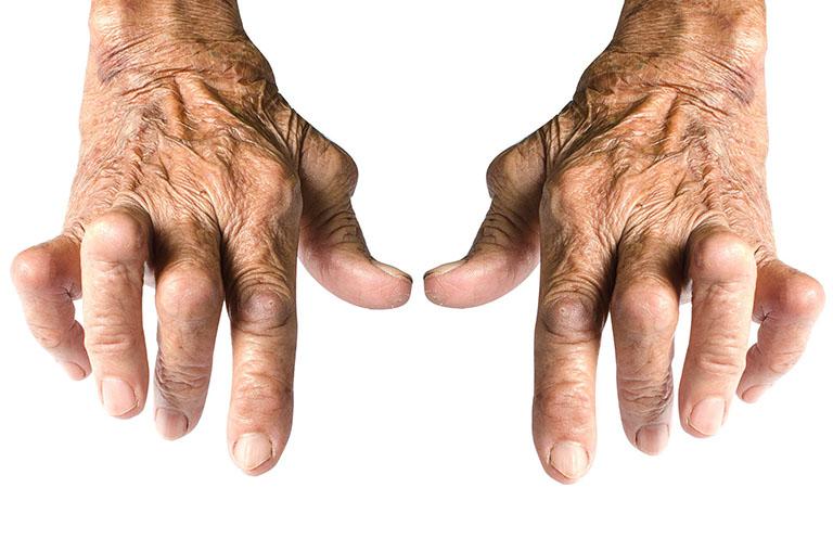 hạt dưới da trong viêm khớp dạng thấp có nguy hiểm không