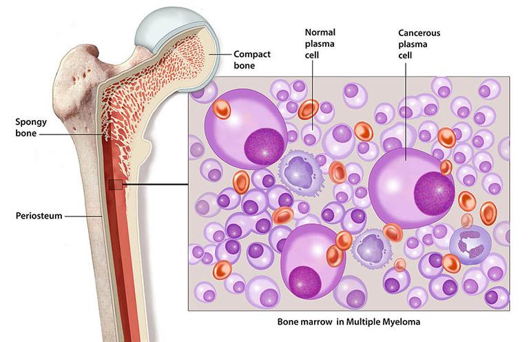 hình ảnh bệnh đa u tủy xương