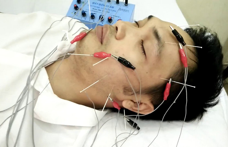 chữa liệt dây thần kinh VII ngoại biên