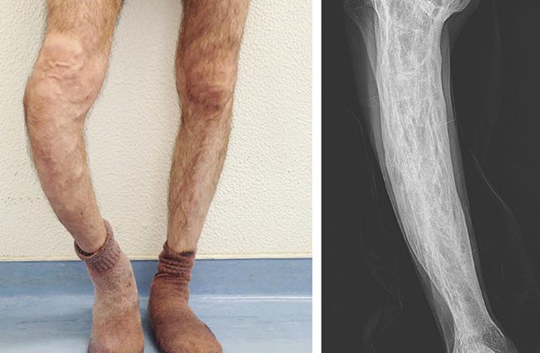dấu hiệu bệnh Paget xương