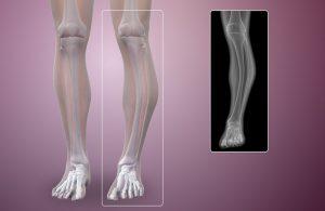 bệnh Paget xương