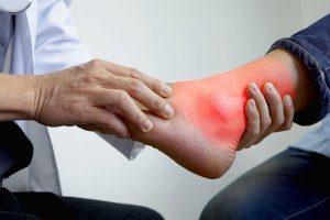 phác đồ điều trị gout