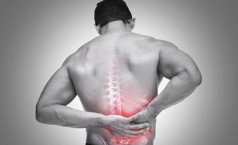 Các thuốc trị giãn dây chằng lưng tốt nhất và lưu ý