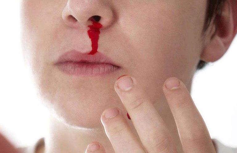 tác dụng phụ của thuốc xịt mũi Flixonase