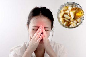 dùng tỏi ngâm mật ong chữa viêm xoang