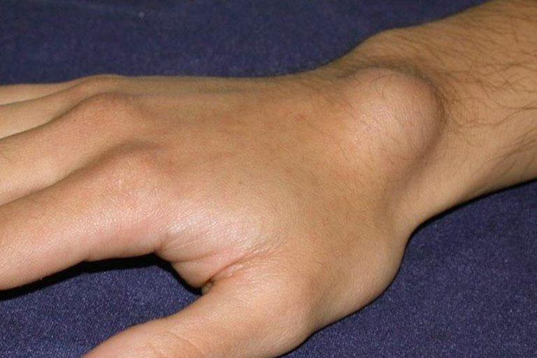 các loại u xương lành tính