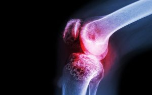 U xương ác tính: Dấu hiệu, chẩn đoán và cách điều trị
