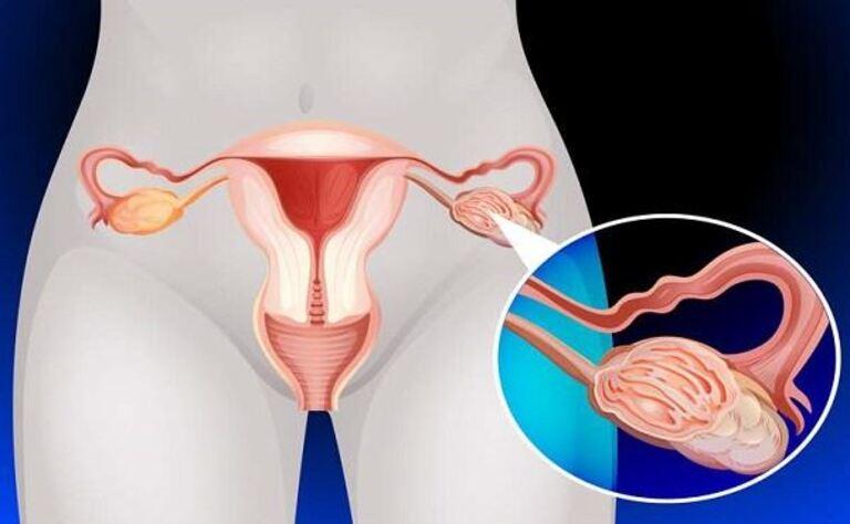 Ung thư cổ tử cung có chết không? Sống được bao lâu?
