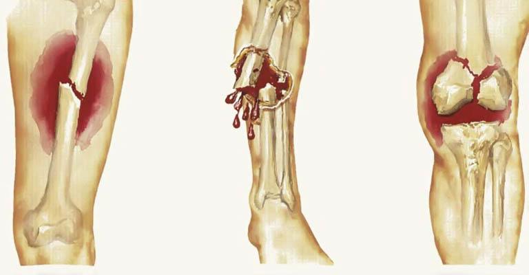 dấu hiệu ung thư xương