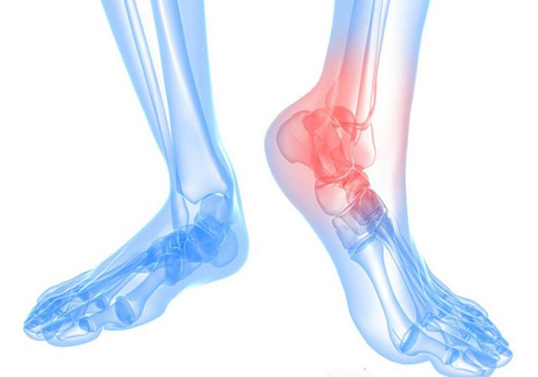 phương pháp bấm huyệt chữa đau khớp cổ chân