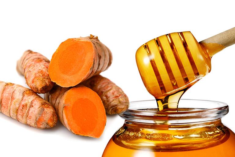 mẹo dùng nghệ vàng làm giảm đau bao tử
