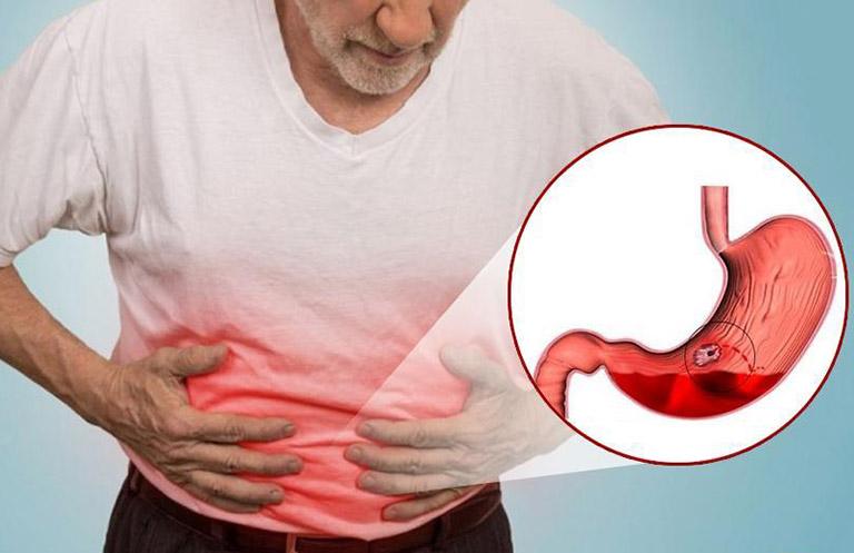 viêm dạ dày cấp nguy hiểm không