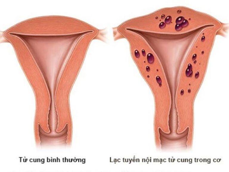 Chữa lạc nội mạc tử cung bằng thuốc nam được không?