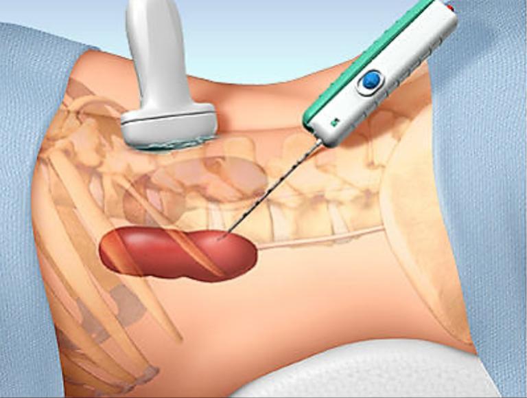 Chẩn đoán hội chứng thận hư kháng thuốc