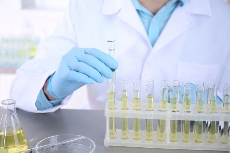 Xét nghiệm chẩn đoán thận hư kháng thuốc
