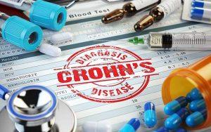 thuốc điều trị bệnh Crohn