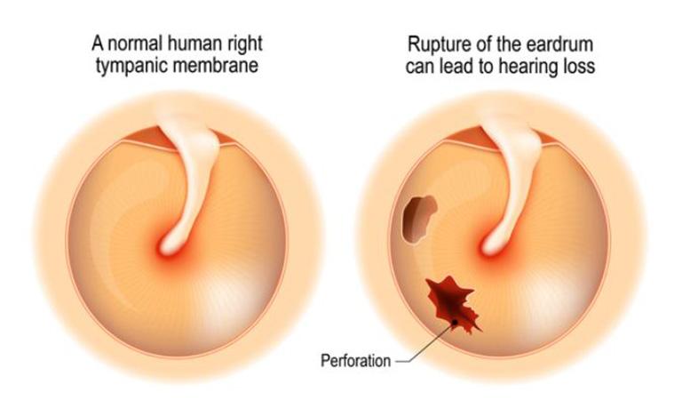 Viêm tai giữa mạn tính có cholesteatoma