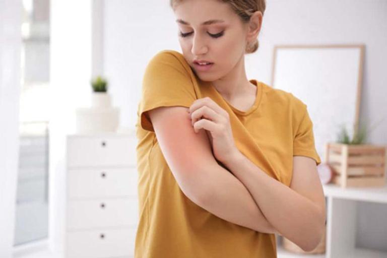 Viêm thận Lupus là gì?