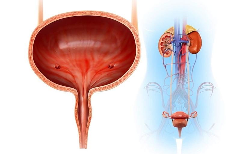 Bệnh sỏi bàng quang xảy ra rất phổ biến ở nam giới