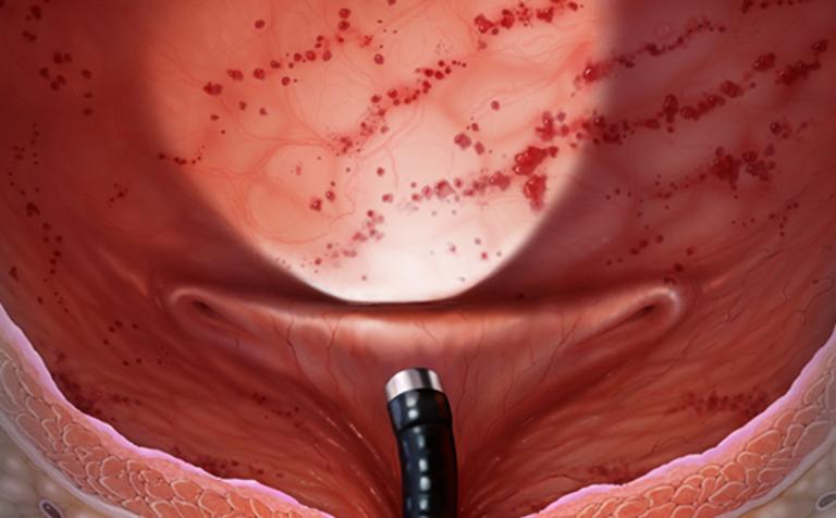 Thuốc Đông y điều trị viêm bàng quang hiệu quả