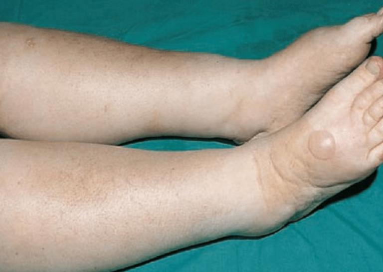 Hội chứng thận hư nguyên phát ở người trưởng thành