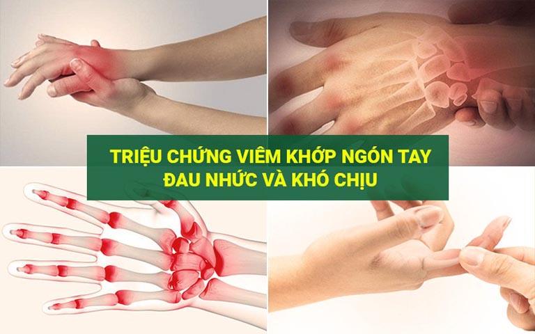 Triệu chứng của bệnh viêm khớp ngón tay