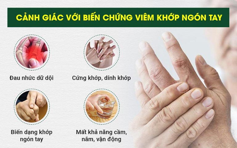 viêm khớp ngón tay có nguy hiểm không