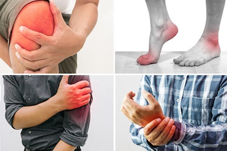 Viêm khớp phản ứng có chữa được không