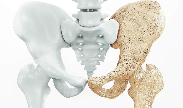 Nguyên nhân gây bệnh loãng xương ở người cao tuổi