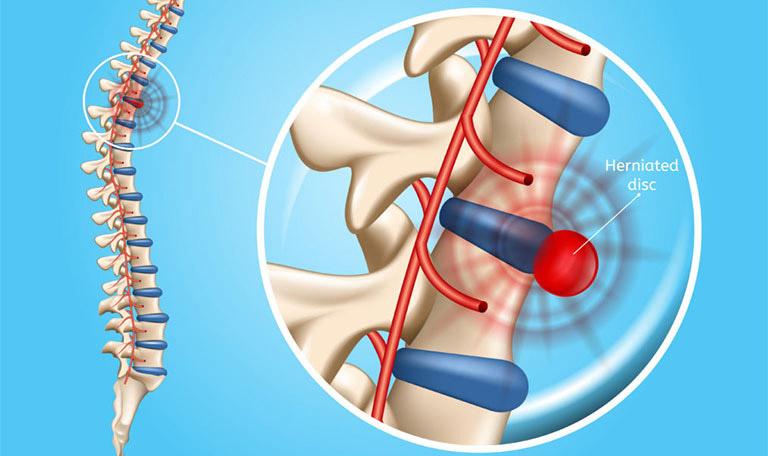 Biến chứng của bệnh thoát vị đĩa đệm cột sống