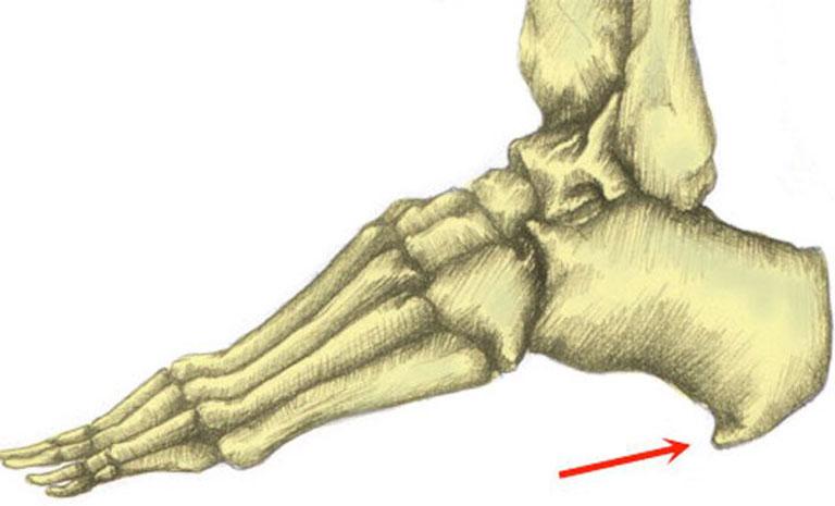 nguyên nhân gây đau gót chân