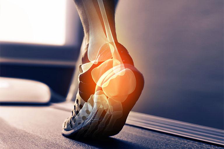 Đau gót chân khám ở bệnh viện nào tốt nhất?