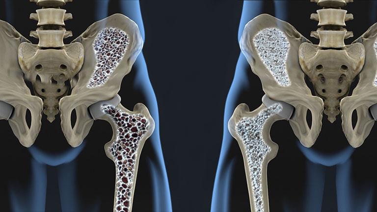 nguyên nhân khiến phụ nữ sinh thường bị đau khớp háng
