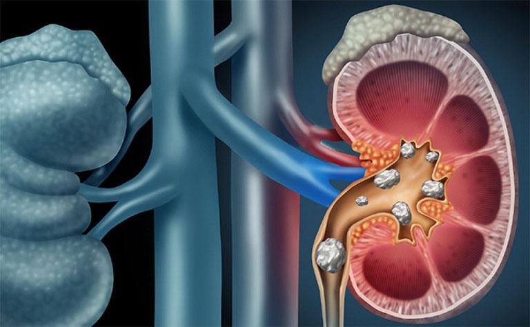 Sỏi thận rơi xuống bàng quang là nguyên nhân hàng đầu gây ra bệnh sỏi bàng quang