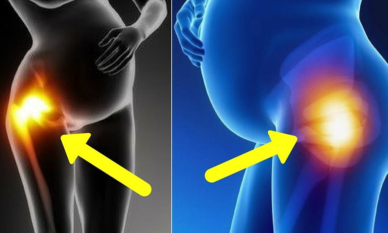 dấu hiệu bị đau khớp háng khi mang thai