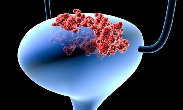 Các giai đoạn ung thư bàng quang