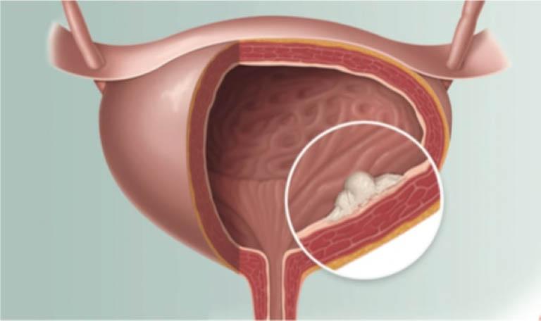 các giai đoạn của ung thư bàng quang